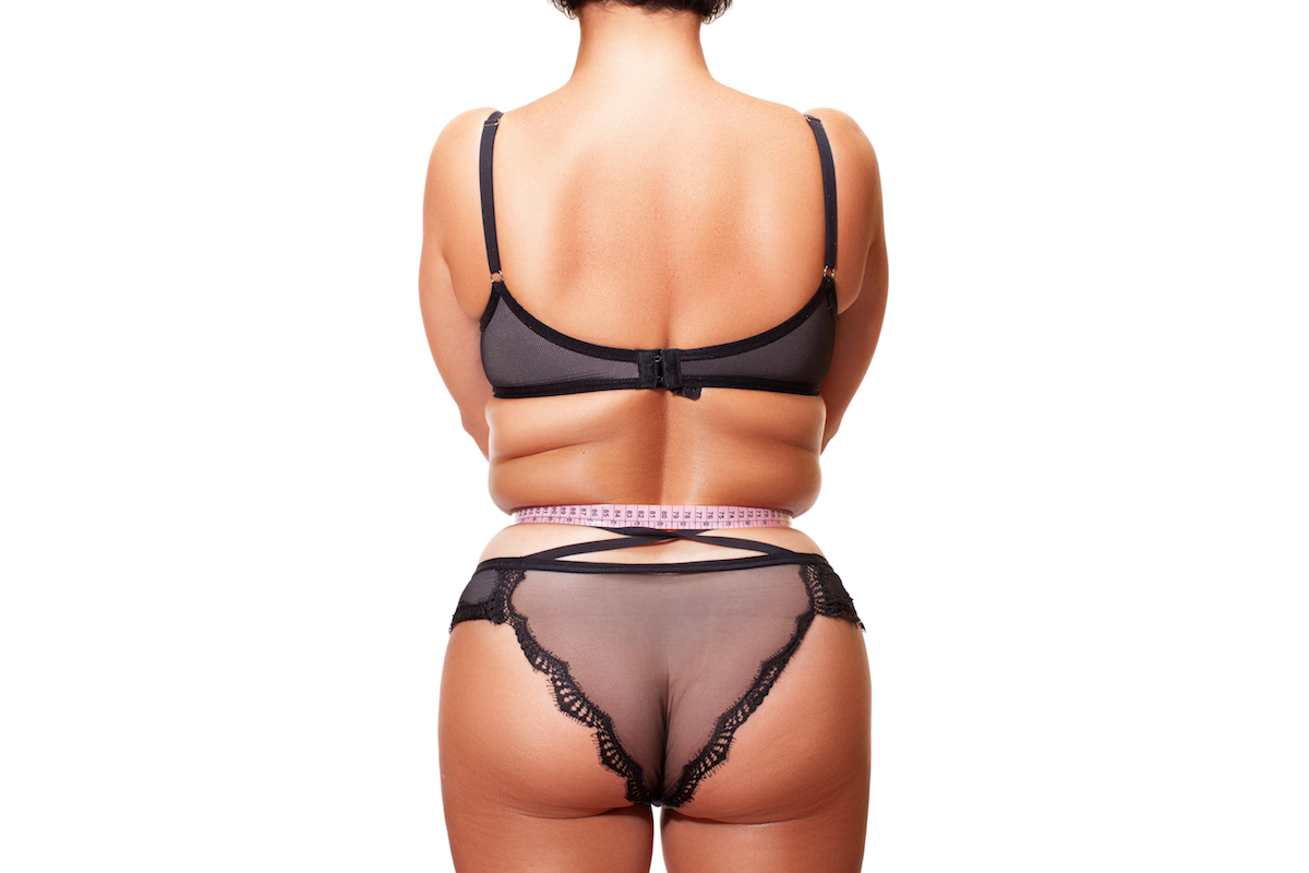 how to get rid of stubborn fat chicago laser lipo