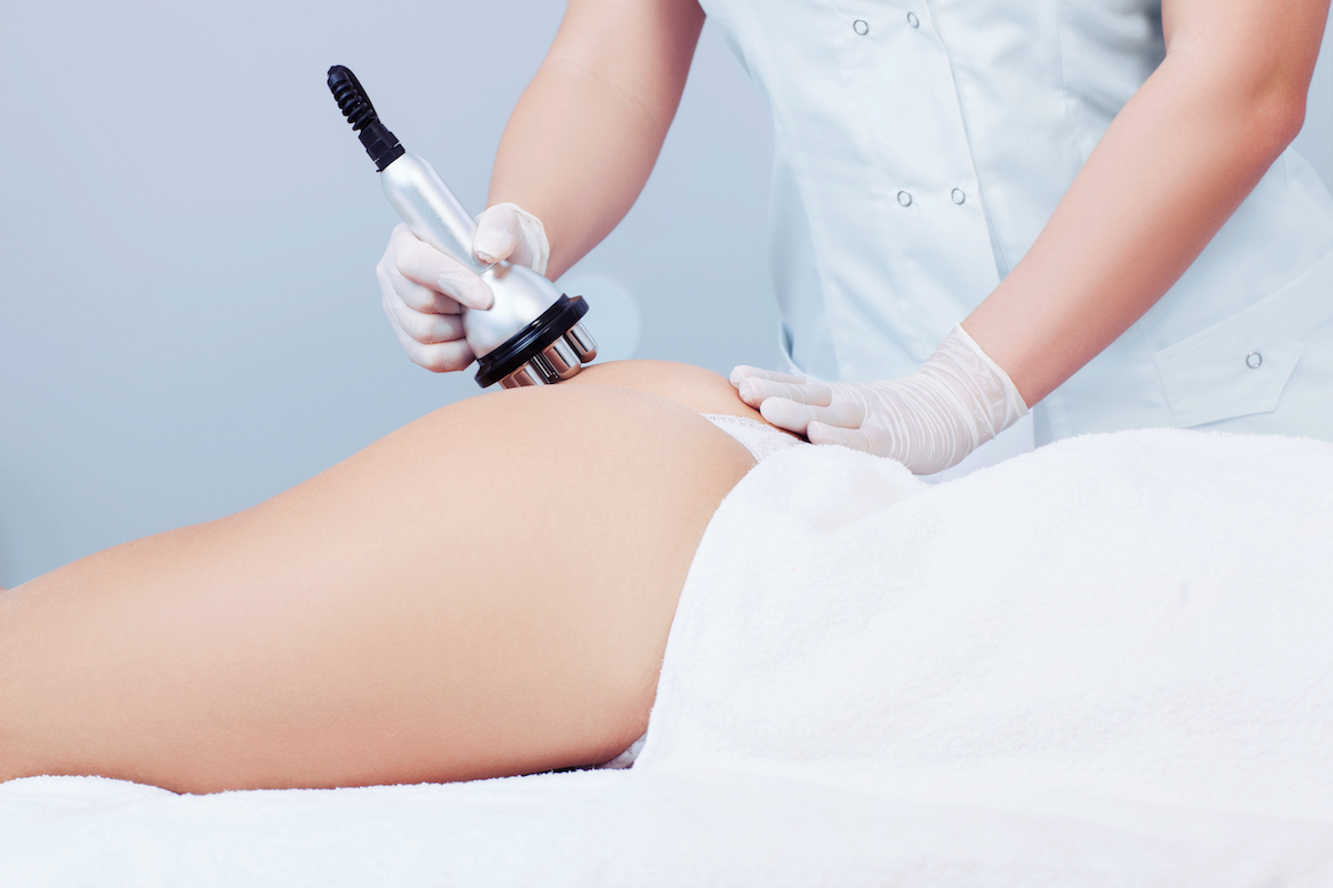 radiofrequency cellulite treatment Chicago