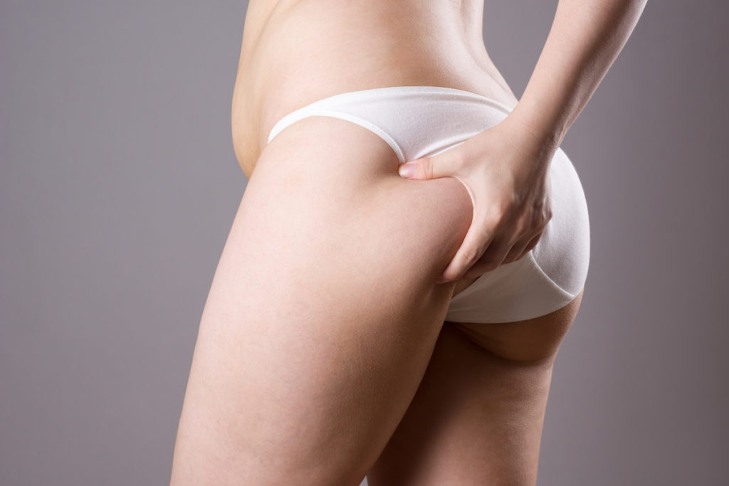 cellulite reduction Chicago body contouring
