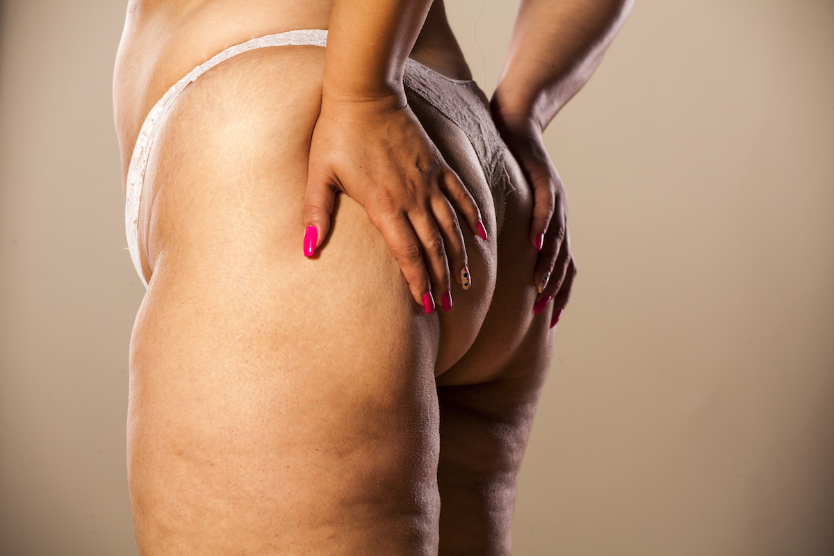 what causes cellulite Chicago body contouring