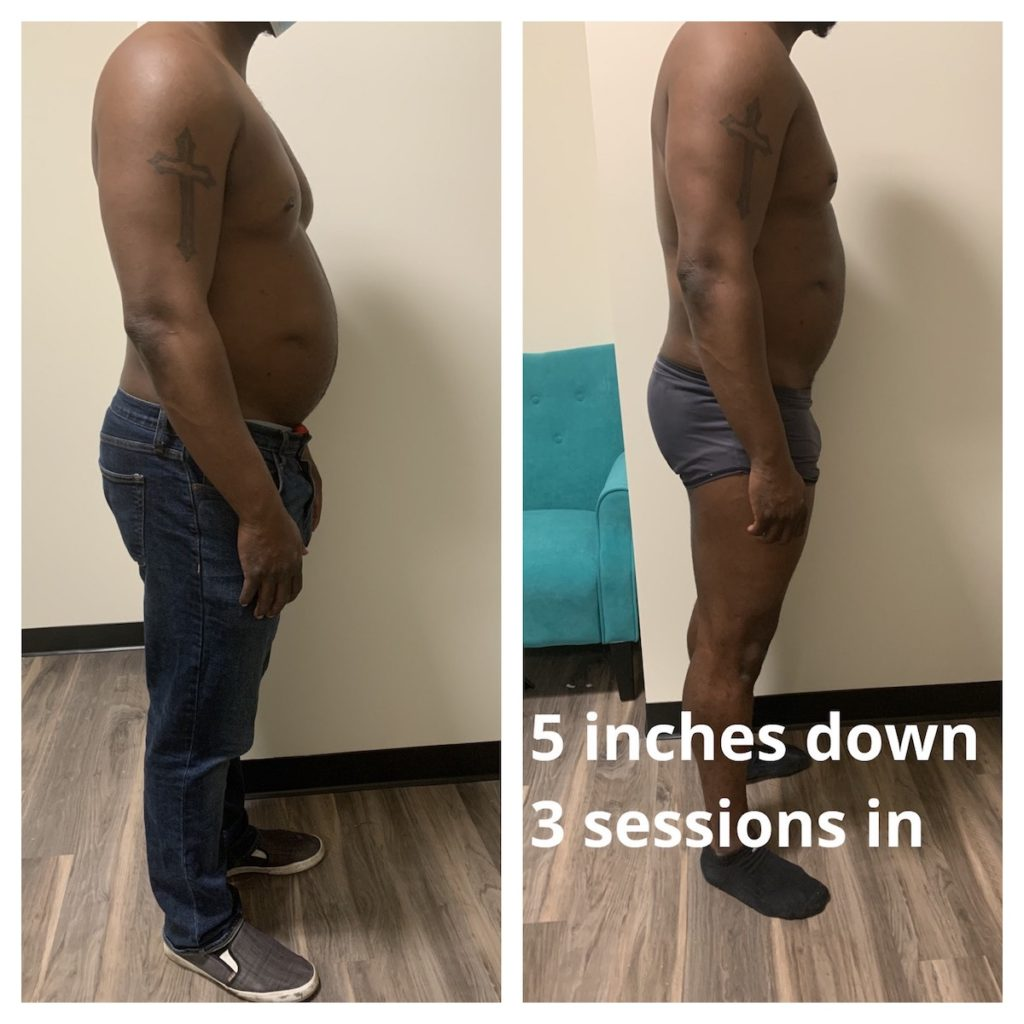 weight loss Chicago body contouring before and after