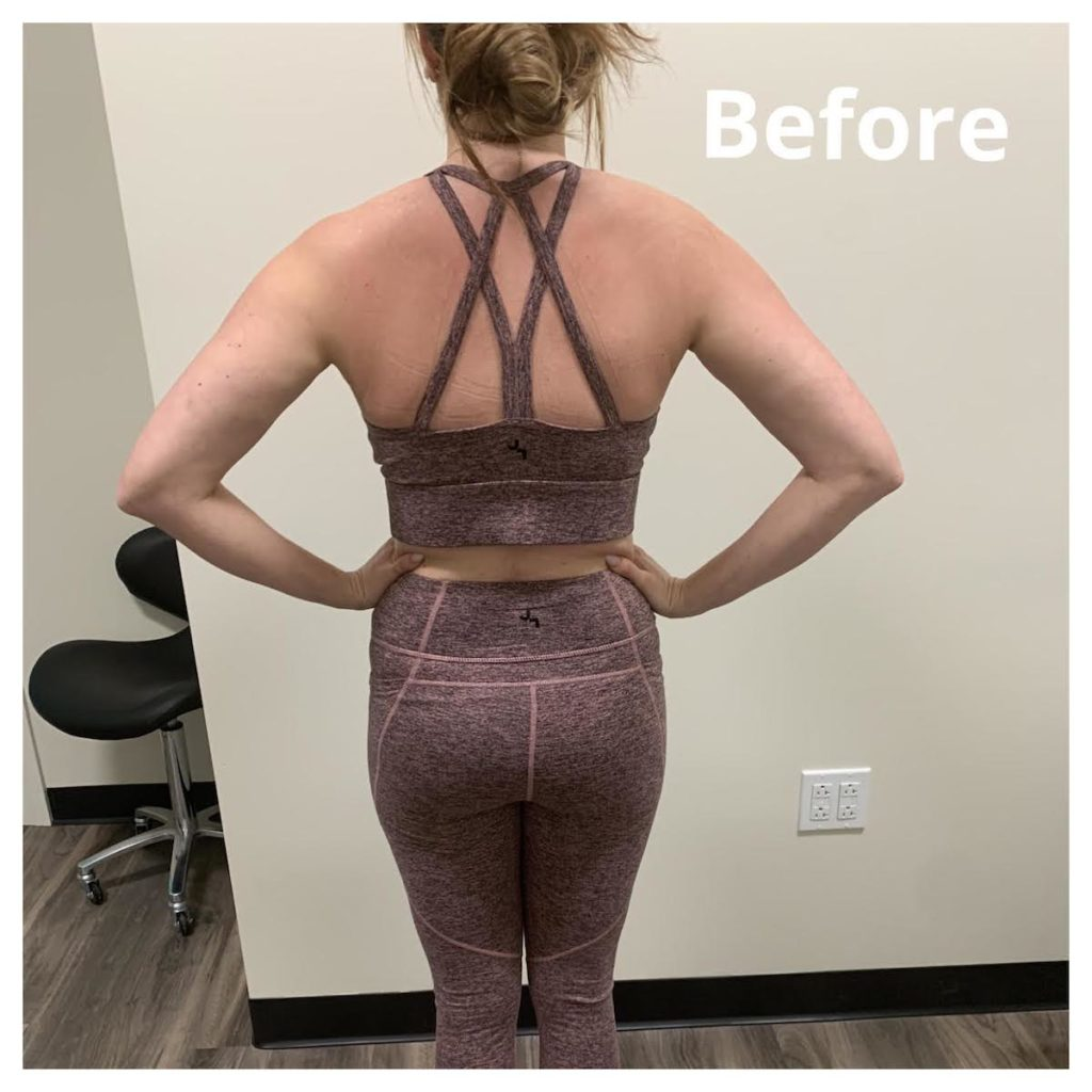 TushToners before and after Chicago body contouring