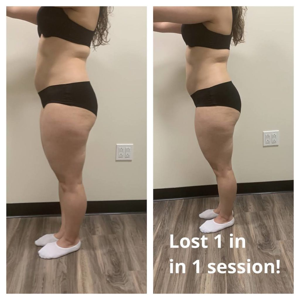 before and after body contouring results Chicago TushToners
