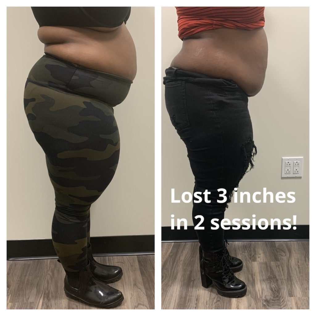 before and after results Chicago body contouring TushToners