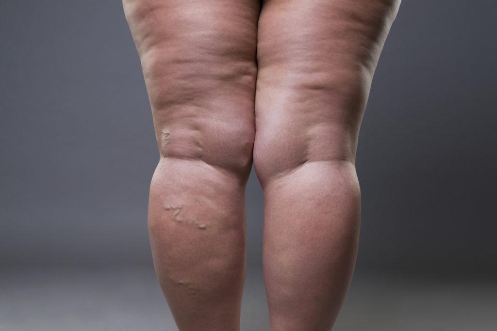 cellulite reduction treatment Chicago TushToners