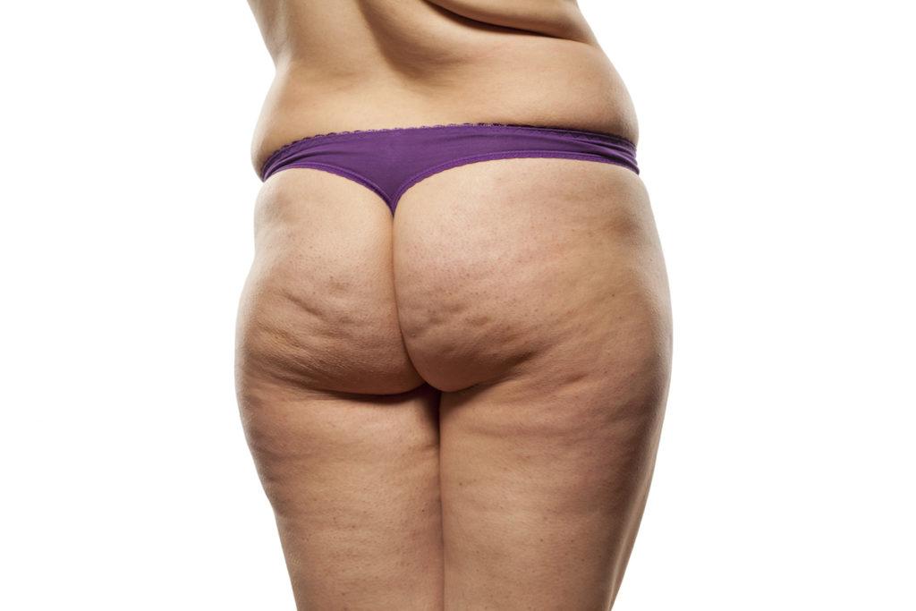 cellulite reduction body contouring Chicago TushToners