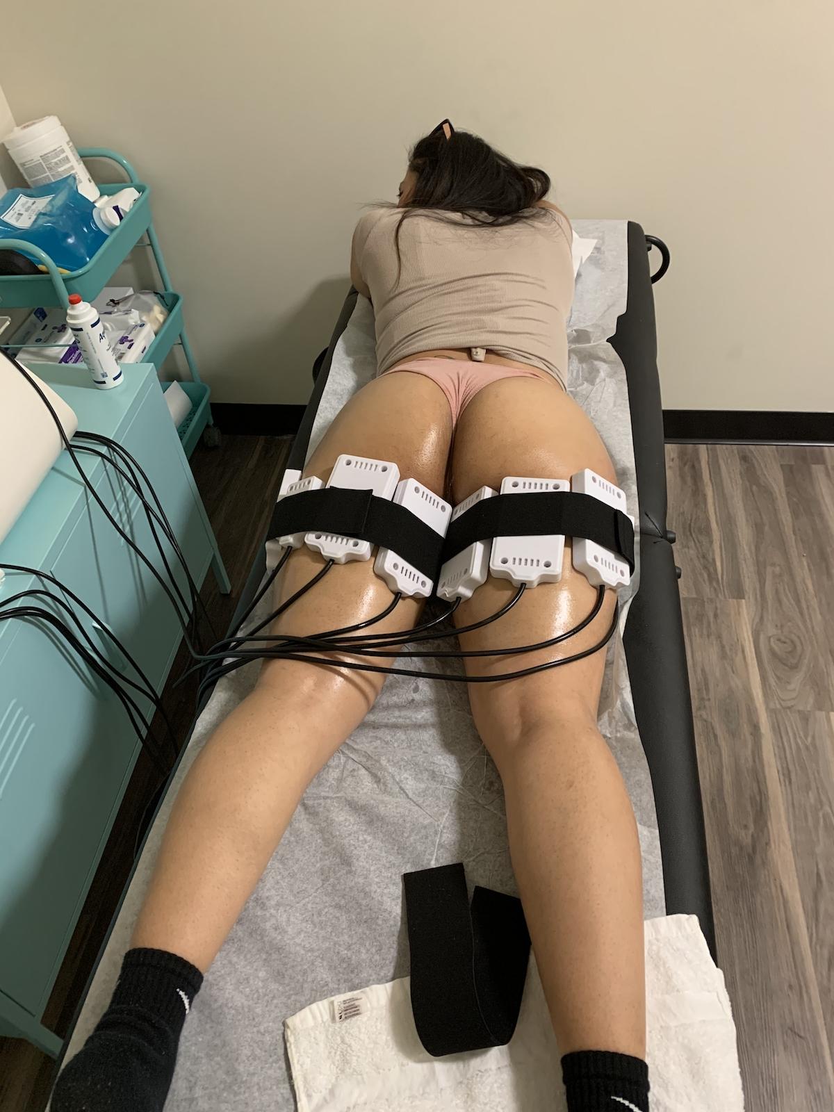 noninvasive laser lipo Chicago TushToners body sculpting
