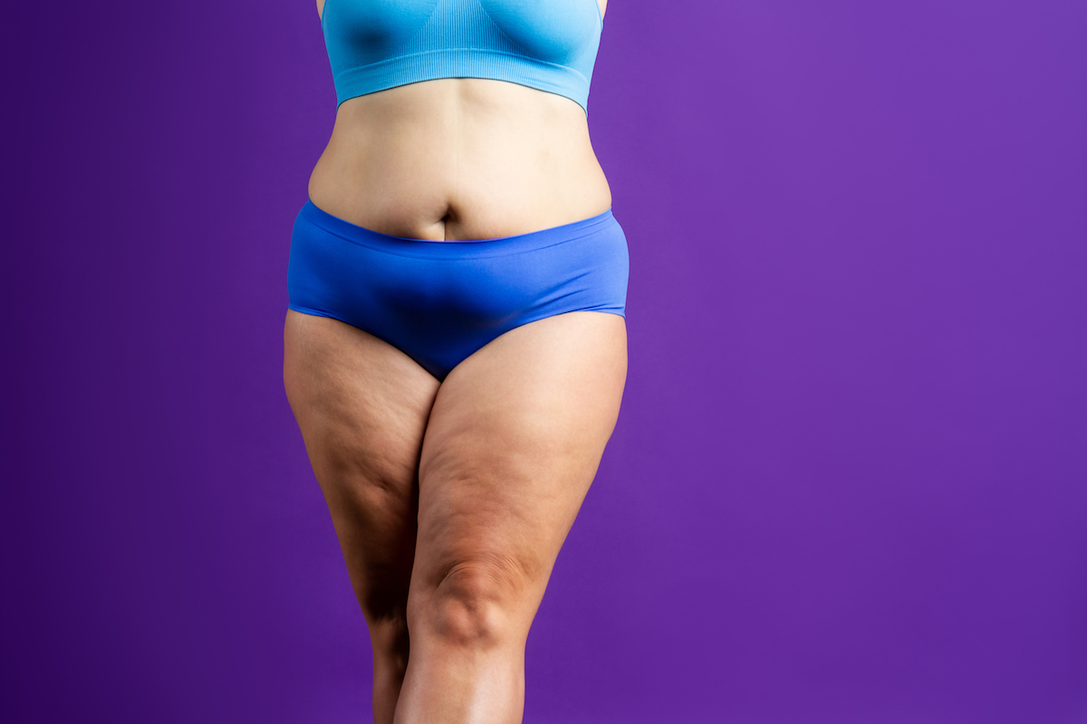 weight loss Chicago body contouring TushToners