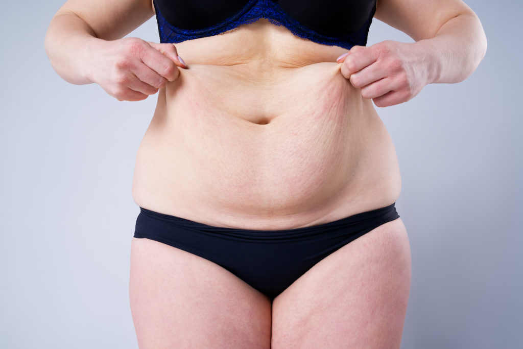 who should get body contouring Chicago