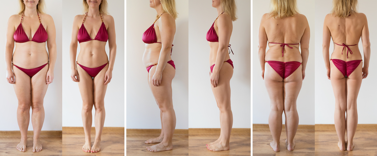 tushtoners before after Chicago body contouring