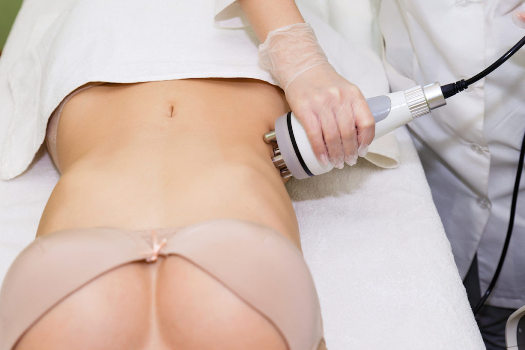 radiofrequency to reduce stretch marks Chicago