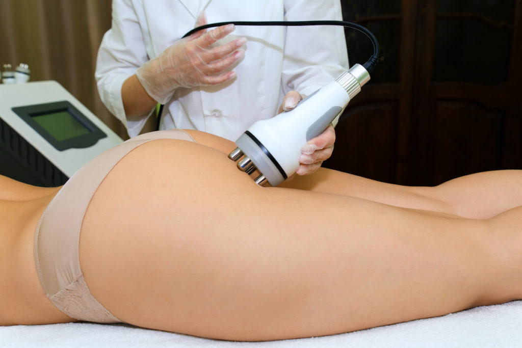 body contouring Chicago cellulite treatment
