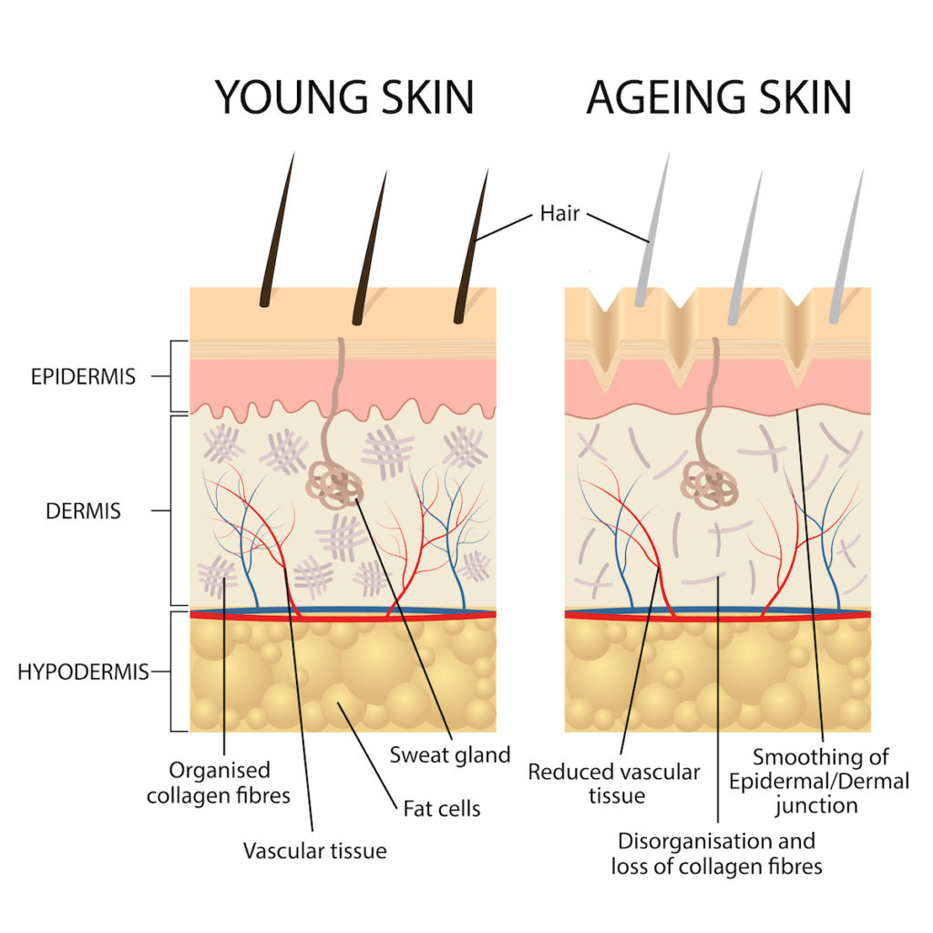 aging and cellulite Chicago body sculpting