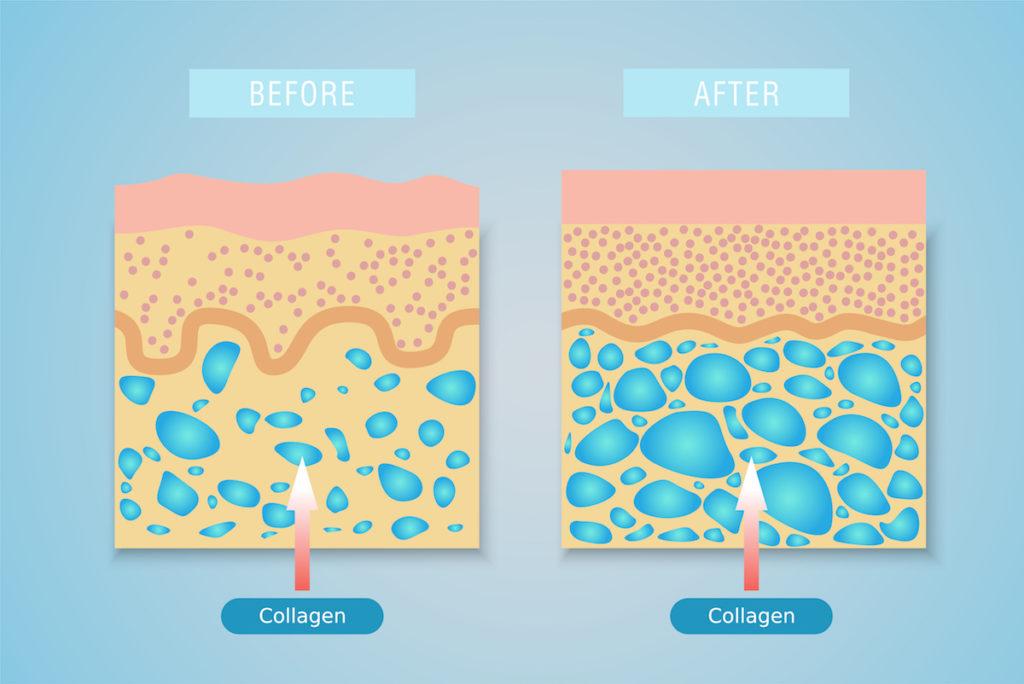Collagen and cellulite weight loss Chicago