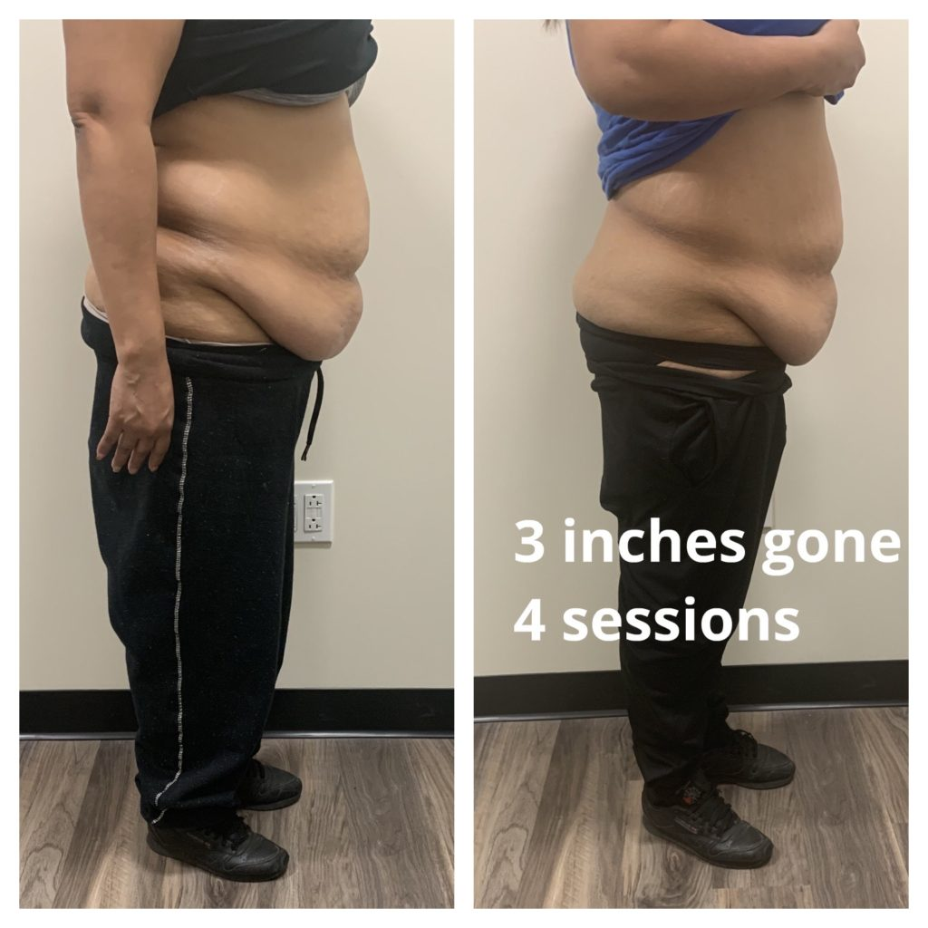 TushToners Chicago reduce fat