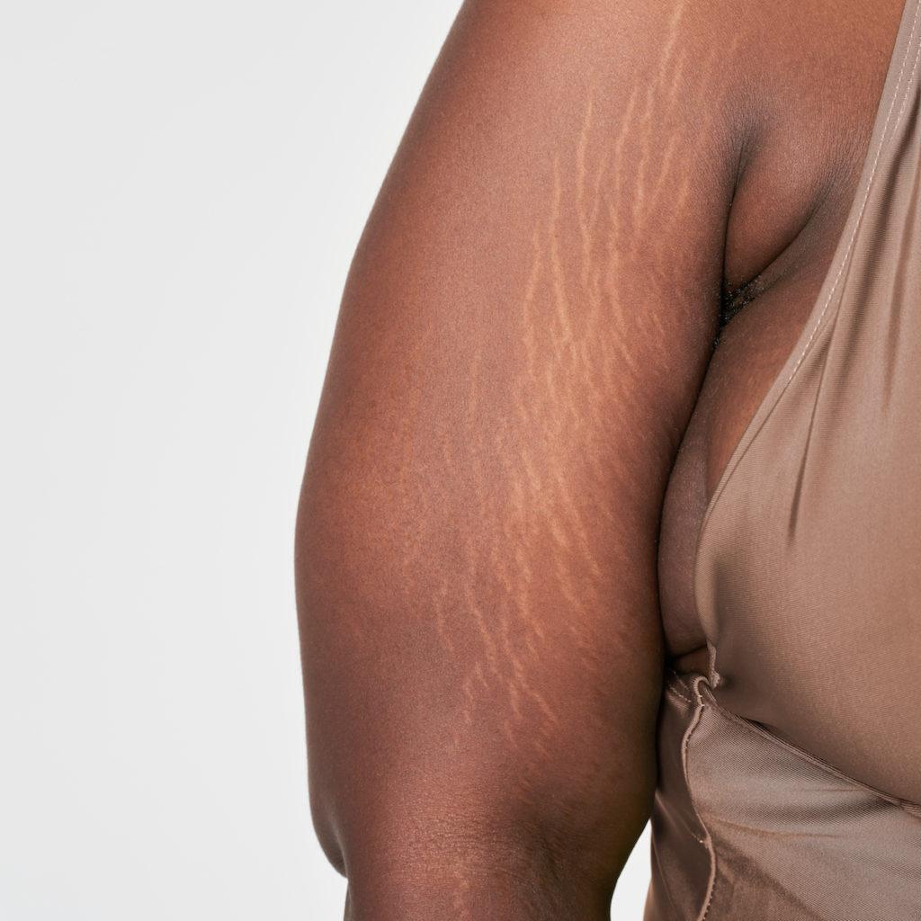radiofrequency skin tightening arm fat chicago