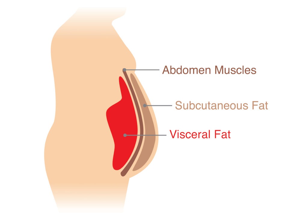 visceral fat chicago noninvasive weight loss