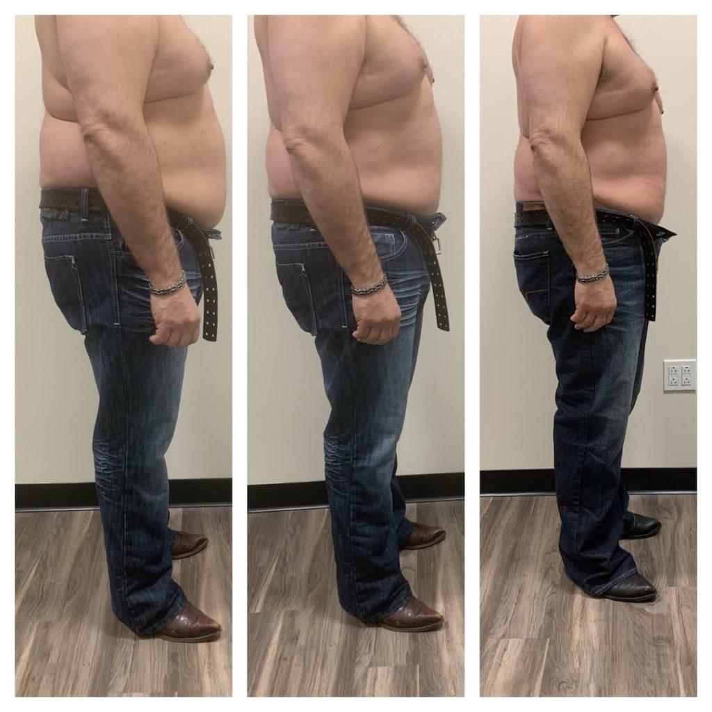 non invasive body contouring vs liposuction Chicago