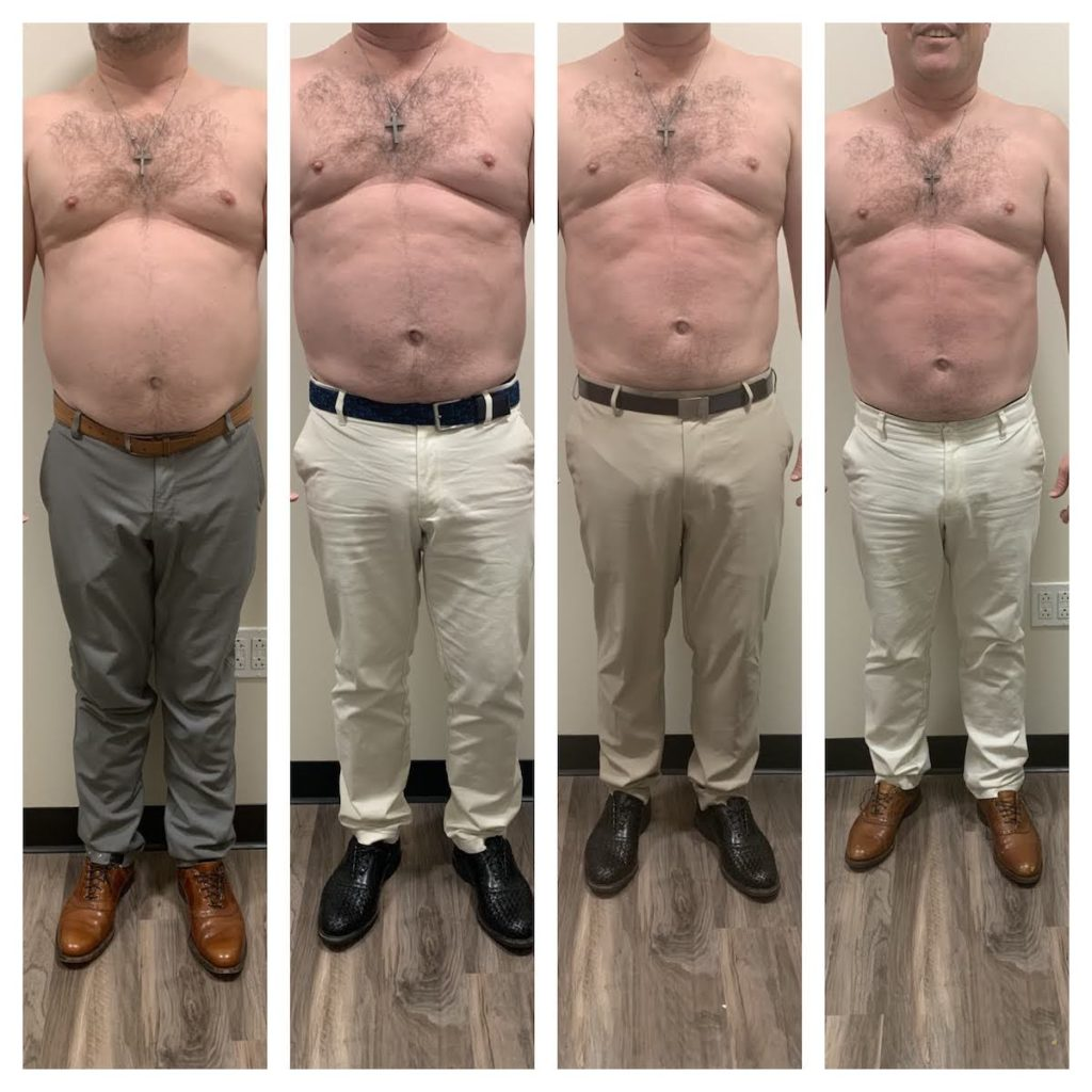 noninvasive body contouring before after